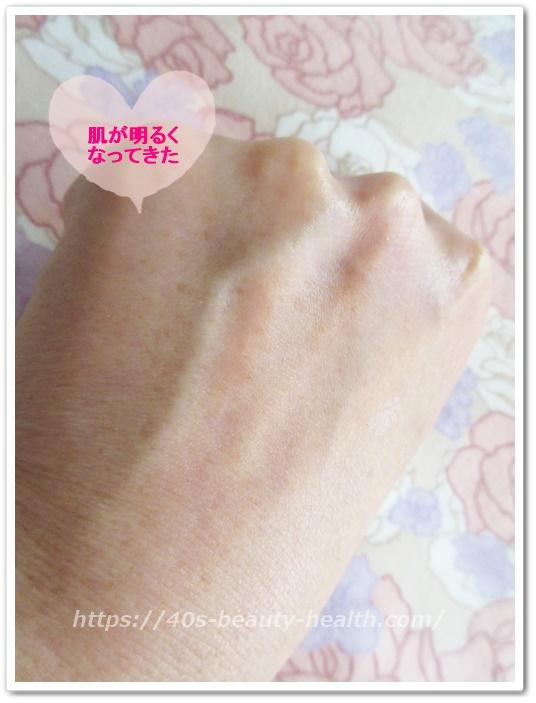 ルミナピール シミ 口コミ 40代 手の甲 しみ 黒ずみ 消える効果 北の達人 ピーリング美白化粧品 肌の色