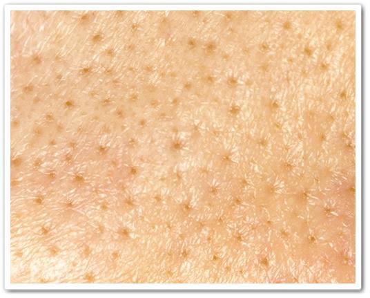 マナラオンリーエッセンス 口コミ manara まなら 毛穴 オールインワンゲル化粧品 40代 効果 容器 肌