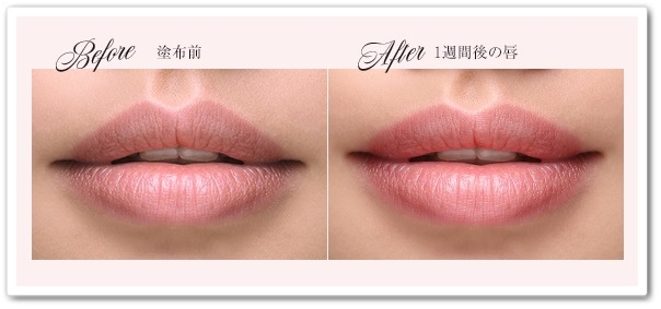 エロイーナ リップトリートメント 口コミ 効果は?縦じわが消える ふっくらする 40代 唇用美容液 EROINA えろいーな 使用前後