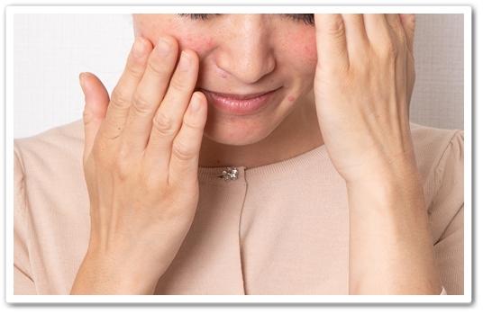 ピオリナ 口コミ peorina ピオリナローション 化粧水 ピオリナサプリ 効果 赤ら顔 悩み