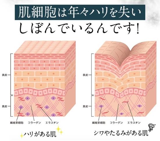 シマボシ レストレーションセラム 口コミ shimaboshi 幹細胞美容液 成分 肌構造2